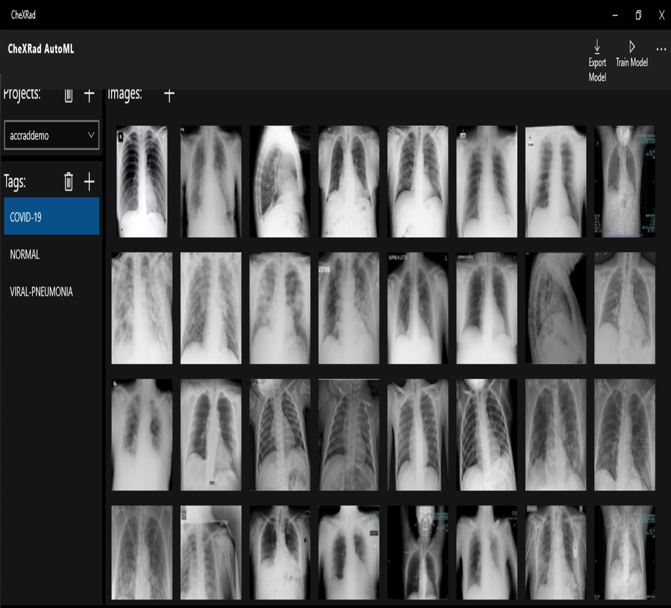 X-ray used for predictive analytics helps surgeons improve patient care